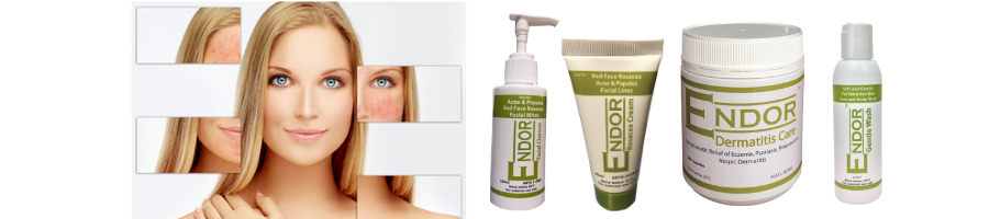 ENDOR rosacea package will clear Rosacea, Acne and Pimple