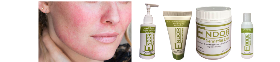 ENDOR Rosacea package for Rosacea, Acne, facial mites and Pimple